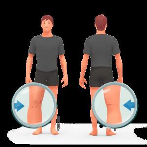 Chirurgie stabilistarice de rotule MPFL zoom devant et derriere